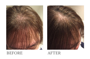 増毛エクステ(ボリュームアップヘアエクステ)は特殊な器具を使用し人工毛を装着する特許を取得した技術。